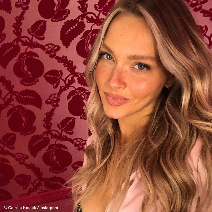 Camille Kostek showcases her freckles in recent shoot for Dune Jewelry